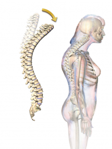 Kyphosis, rounding of the spine, known as hunchback.