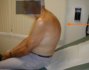 Posutral kyphosis, man with hunchback